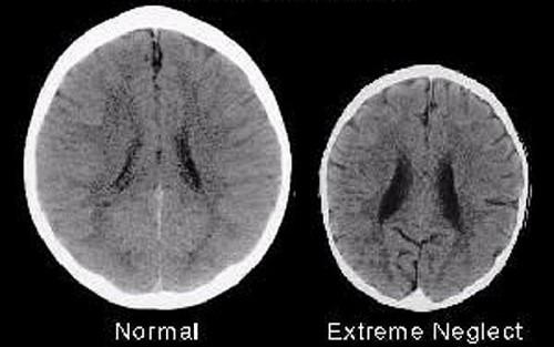 baby-brain_2381083b